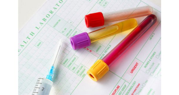 Std Testing For Men and Women