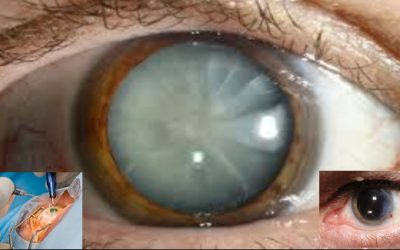 Cataracts Information: Symptoms, Surgery, Cost, Types